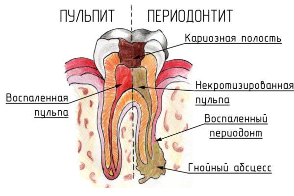Лечение пульпита