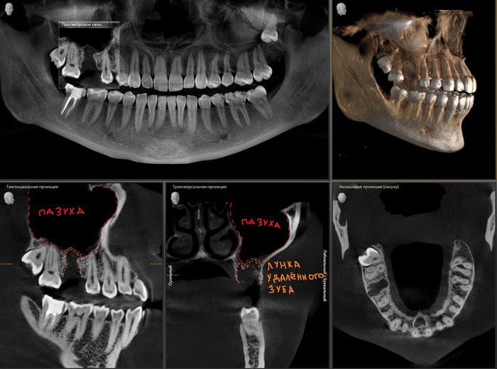 Реконструкция костной ткани в стоматологии