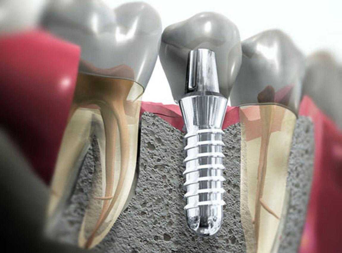 Срок службы имплантов Dentium