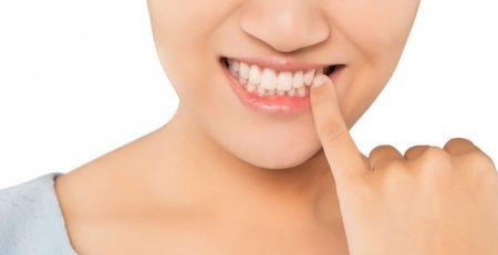 Восстановление и лечение шейки зуба
