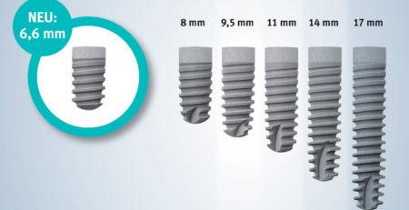 Импланты Ankilos от компании Dentsply