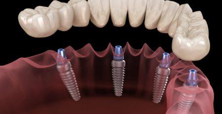 Сколько примерно стоит имплантация зубов. Потеря зубов создает человеку массу проблем, которые не ограничиваются развитием дополнительного комплекса