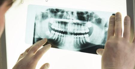 Возможно ли лечение зубов без рентгена?