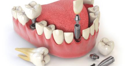 Имплантация зубов «под ключ»
